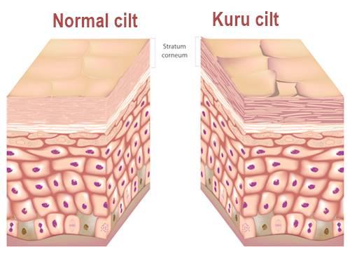 Kserosis kutis hastalığının belirtileri nelerdir