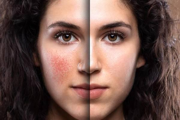 yüz kızarıklığına ne iyi gelir doğal çözümler